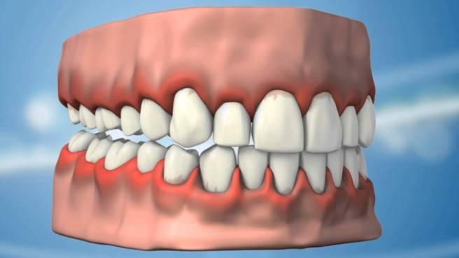 Diş eti rahatsızlıkları ve kanaması neden olur