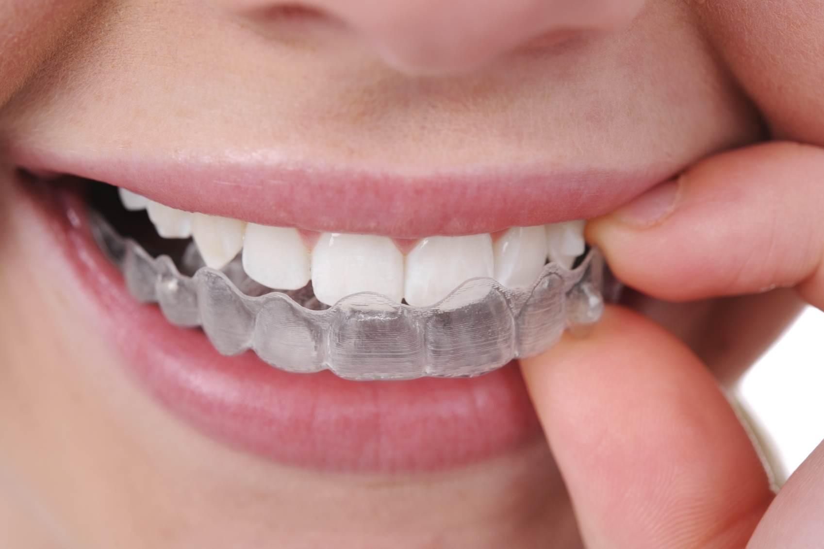 diş plağı